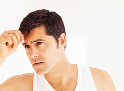 Male Hair Loss Prevention and Treatment